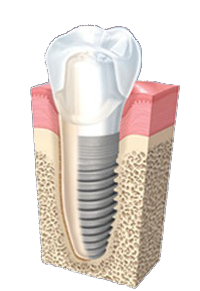 implantat2